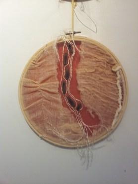 cicatrice 1